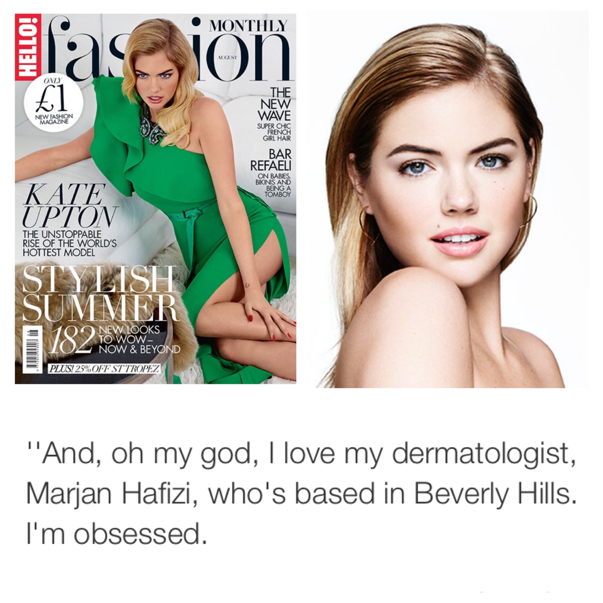 Kate Upton Beverly Hills Dermatology Consultants